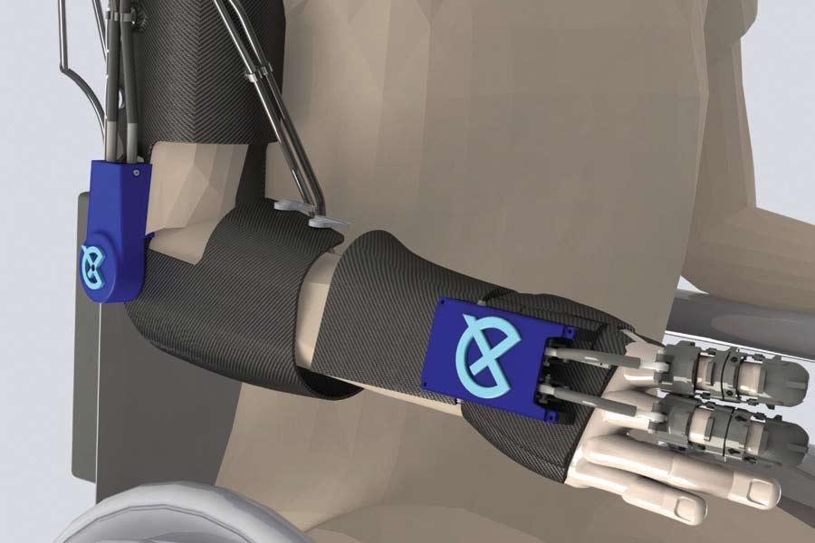 Exoskeletal Arm